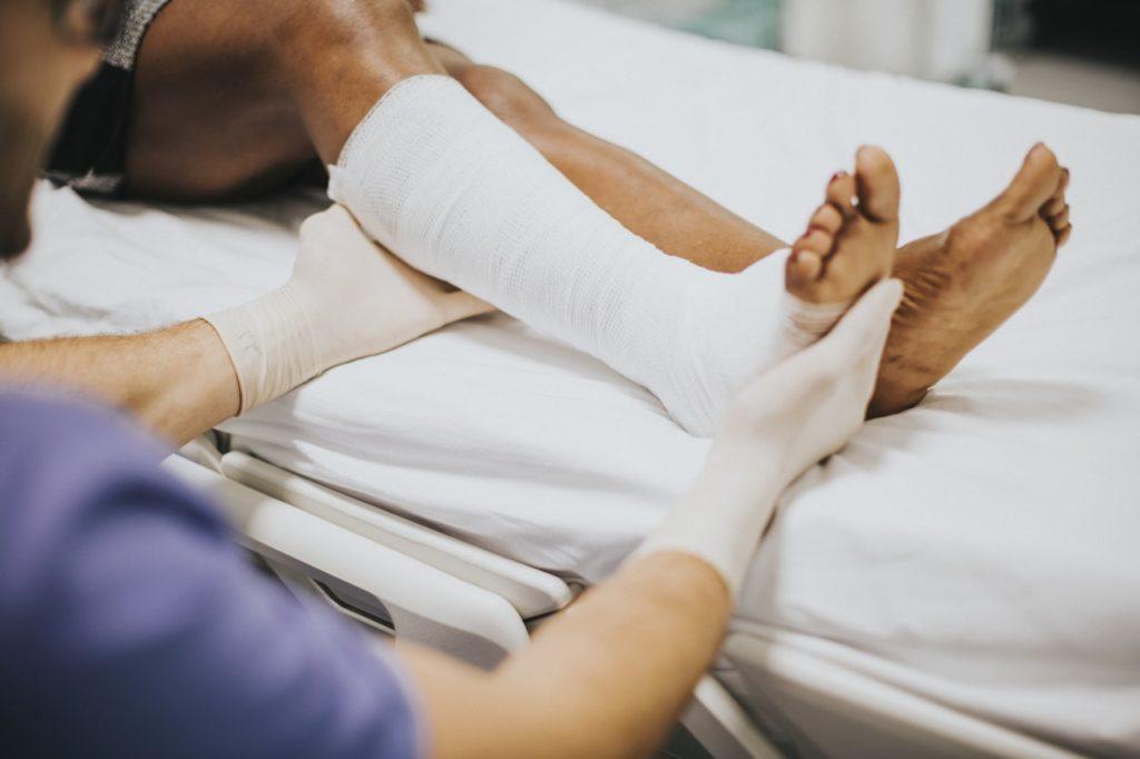 doctor examining cast on leg